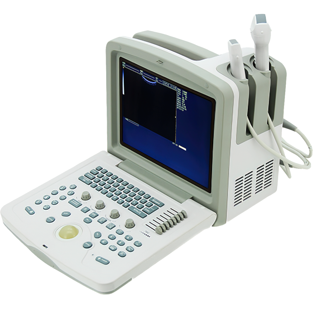Ultraschall Diagnose